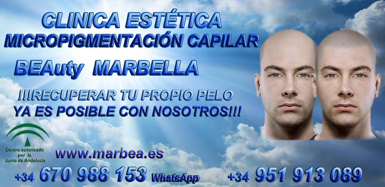 TRATAMIENTO CAIDA DEL PELO MUJER Clínica Estética y tratamiento de la Alopecia Marbella: Te proponemos la mayor calidad de servicios