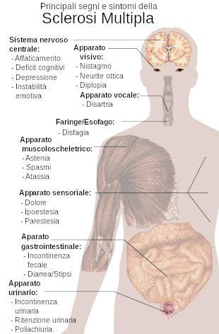 Fisiologia della sclerosi multipla