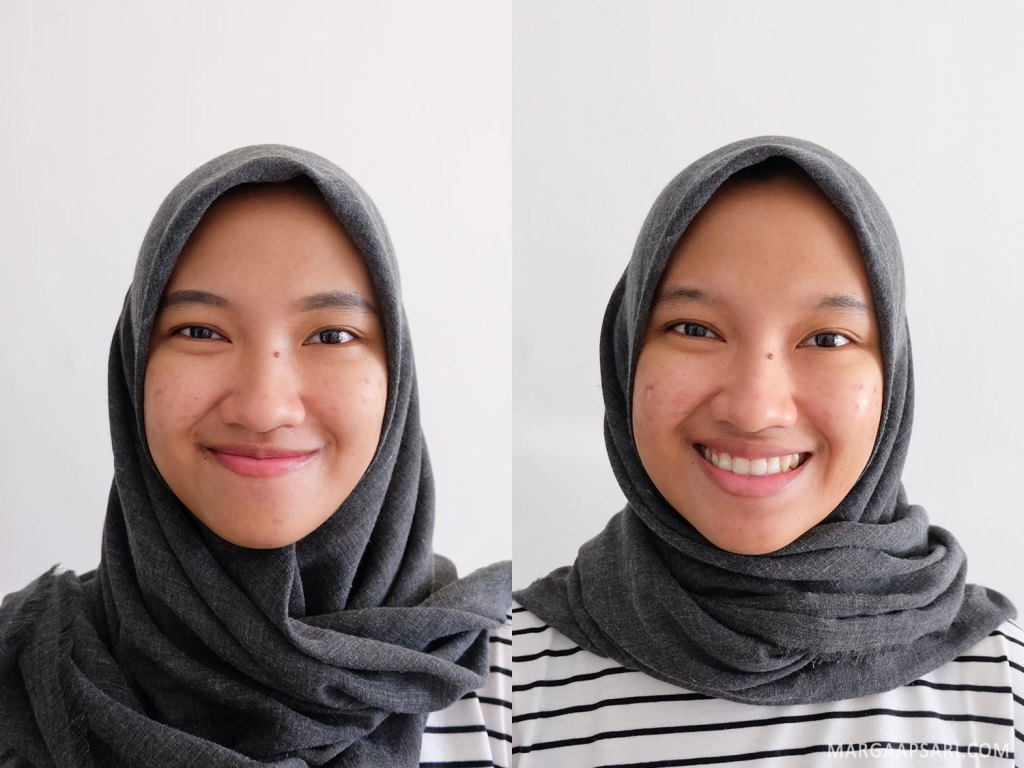Before & after treatment facial di Insta Beauty Center, Jakarta