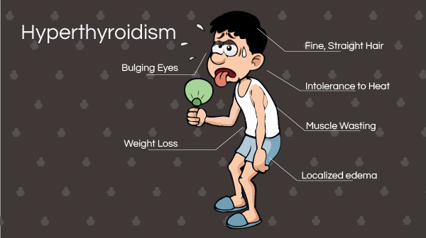 Signs and Symptoms of Hyperthyroidism