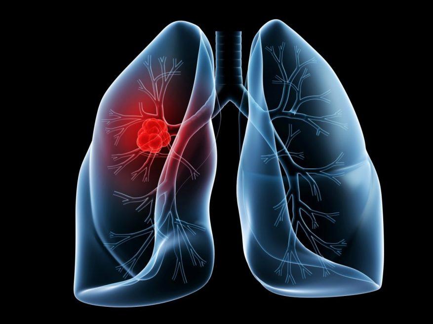 Pneumonia, Asthma, and Bronchitis