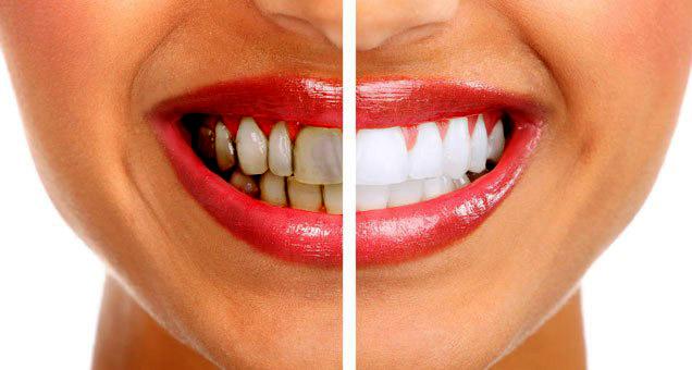 Ways of Avoiding Teeth Stains