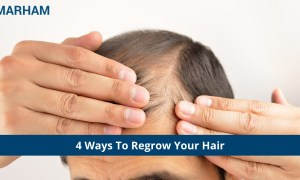 4 Ways to Regrow Your Hair You Should Know!