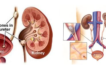 Surprising Habits That Can Cause Kidney Stone Formation