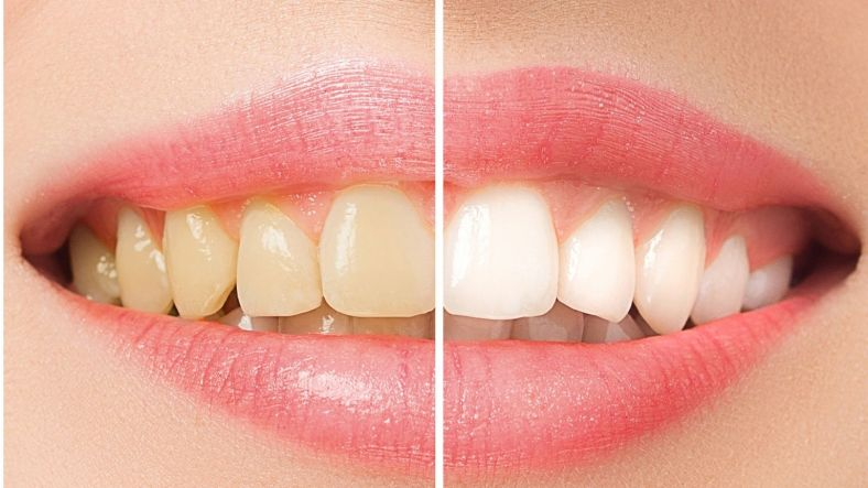 skin whitening before after
