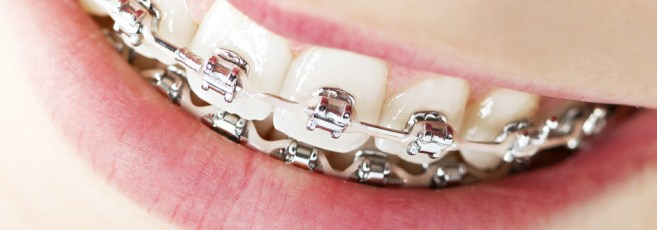 Benefits Of Dental Braces!