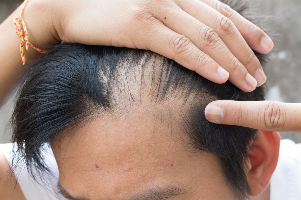 6 Things You Do That Cause Hair Fall