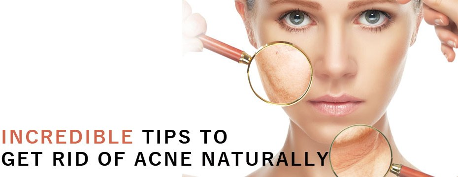 Incredible Tips To Get Rid of Acne Naturally
