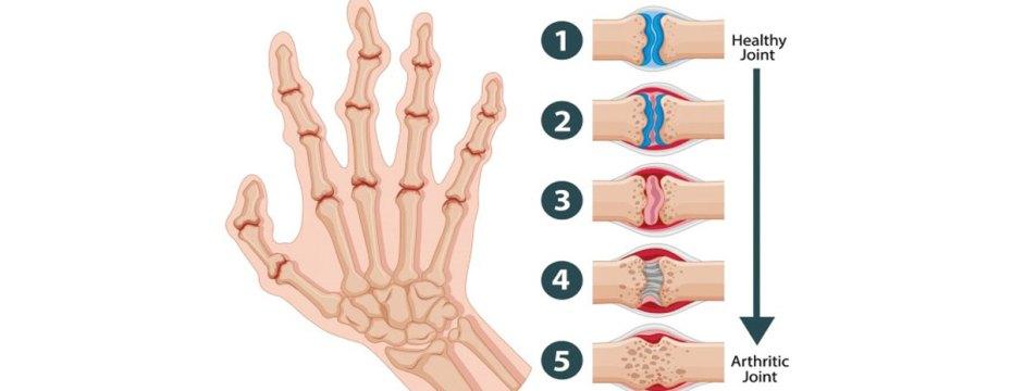Causes of Rheumatoid Nodules