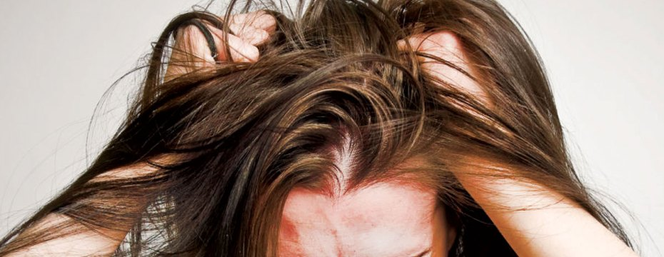 Are You Suffering from Lice Infestation?