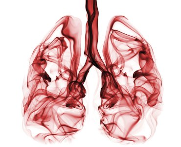 7 Sign and Symptoms of Lung Cancer