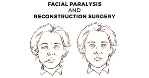 Facial Reconstructive Surgery - A Ray of Light in Dark