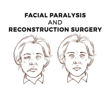 Facial Reconstructive Surgery – A Ray of Light in Dark