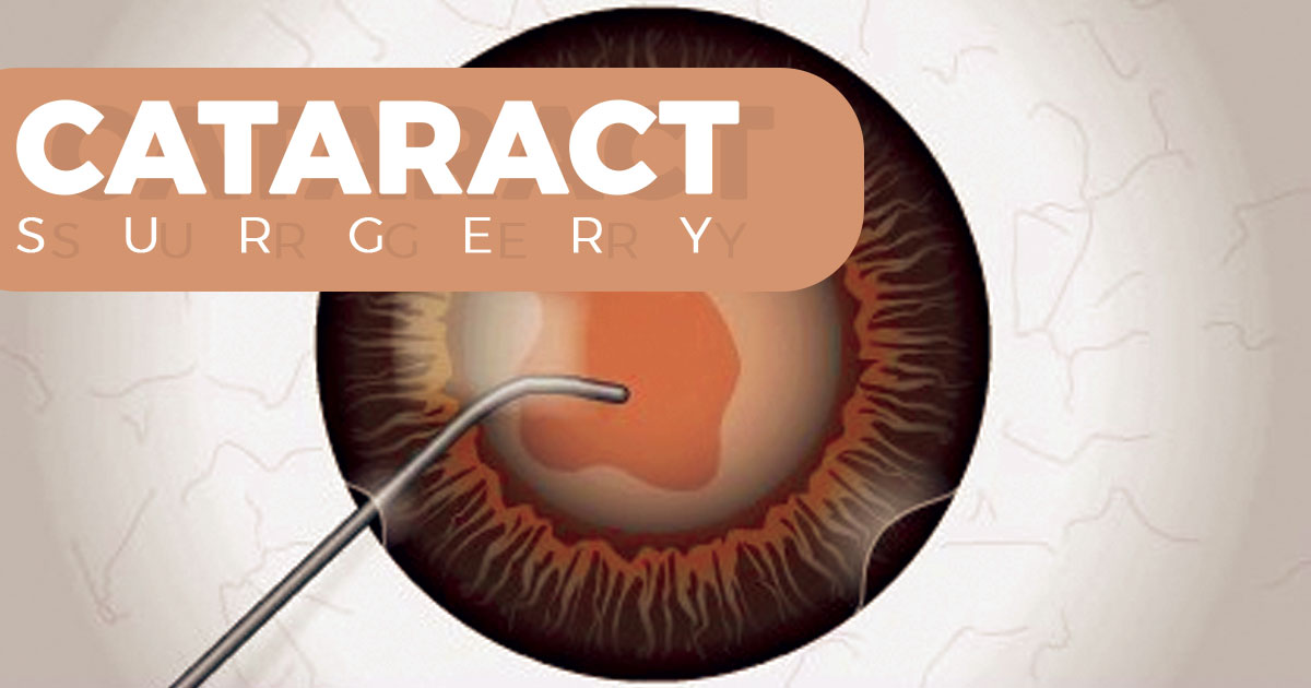 4 Types of Complaints that can be Resolved by Laser Cataract Surgery