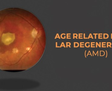 What is Age-Related Macular Degeneration (AMD) ?