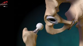 9 Frequently Asked Questions about Hip Replacement Surgery