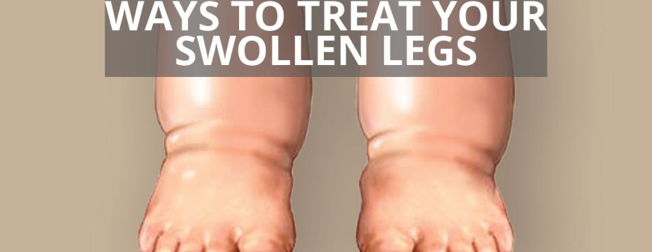 10 Ways to Reduce Swollen Legs