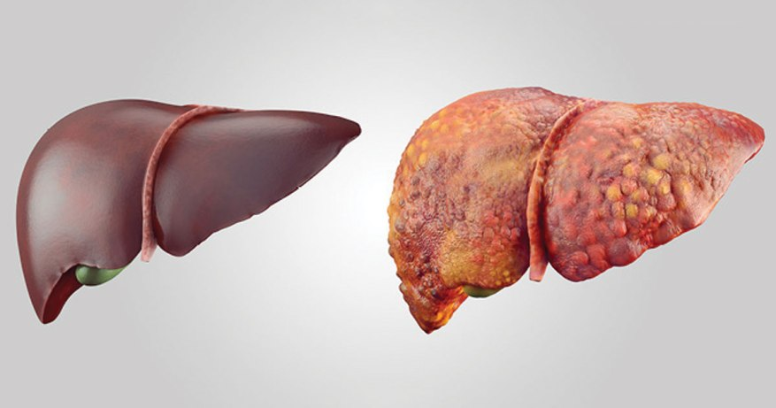 non alcoholic fatty liver disease treatment