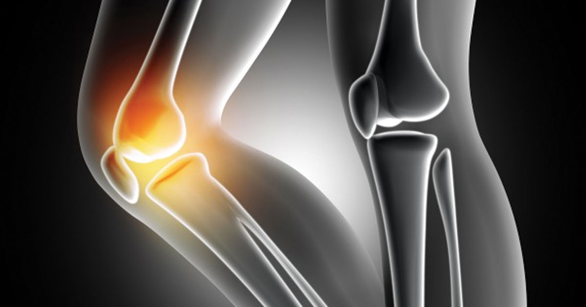 Knee Replacement Surgery - Way of Permanent Relieve