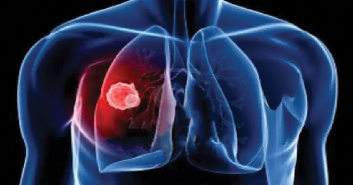 Symptoms of Mesothelioma