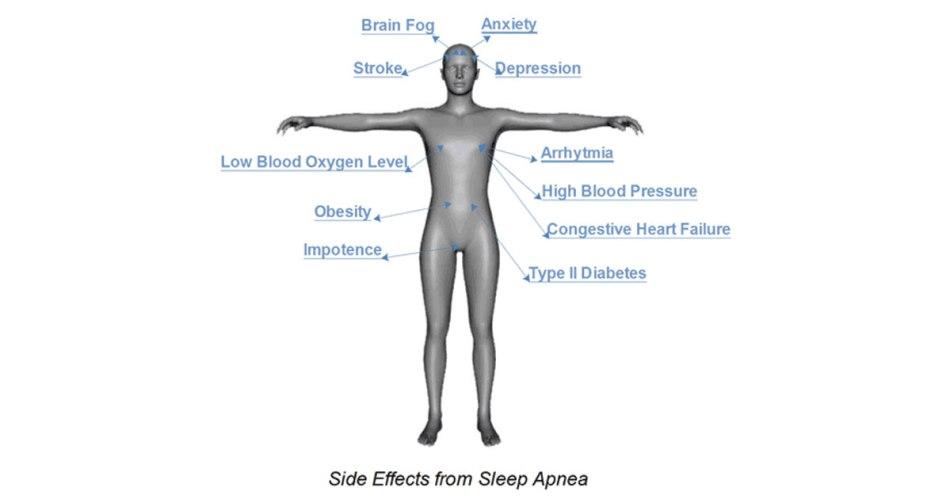 side effects of sleep apnea
