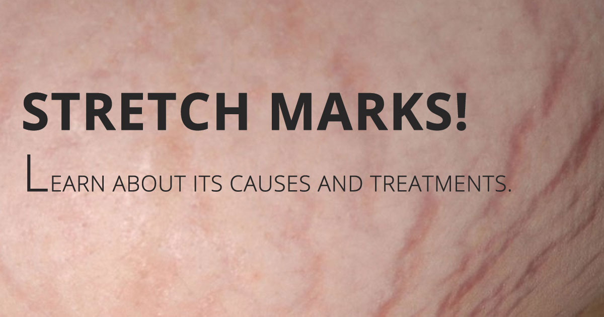 6 Causes of Stretch Marks and Prevention from these