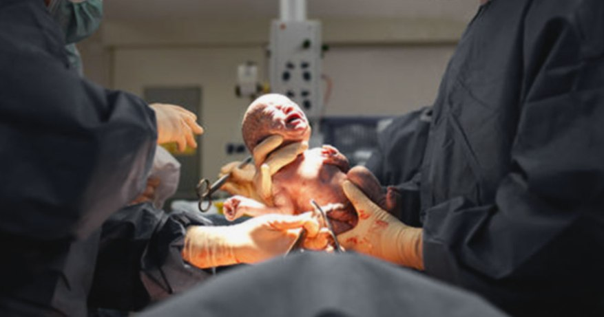 C-section safety