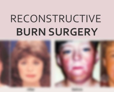 Treatment for Burn Patients