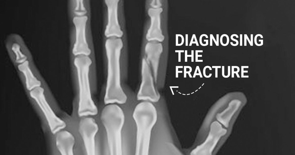 diagnosis of a fracture