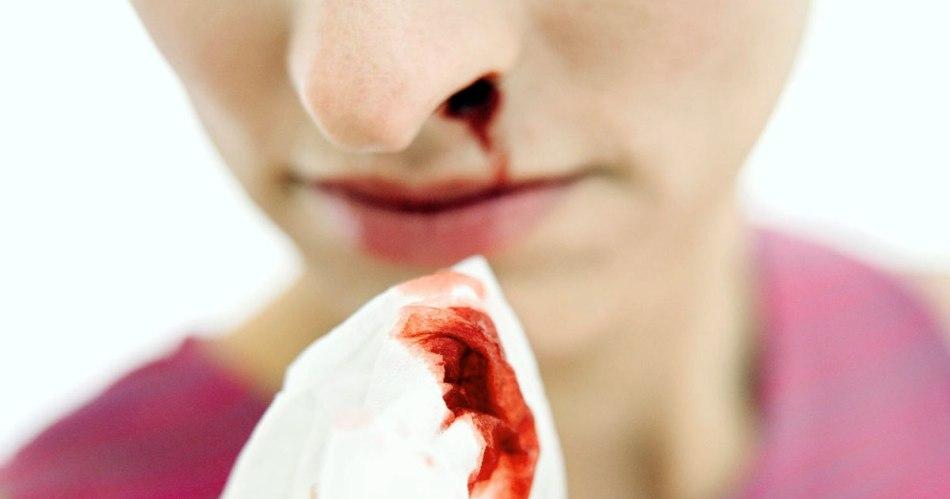 symptoms of hemophilia