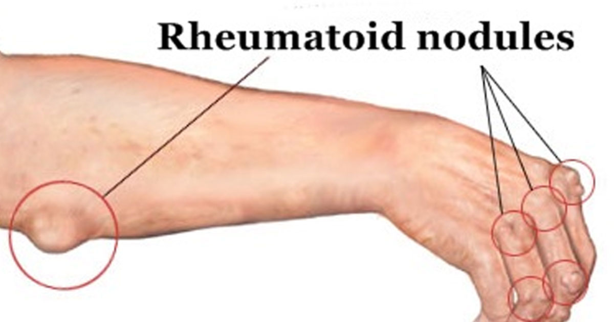These 2 Lifestyle Changes can Control Rheumatoid Nodules