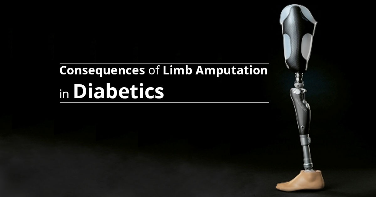 3 Important Questions Regarding Limb Amputation in Diabetics