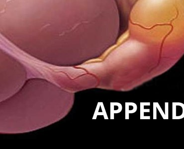What You should Know about Appendicitis