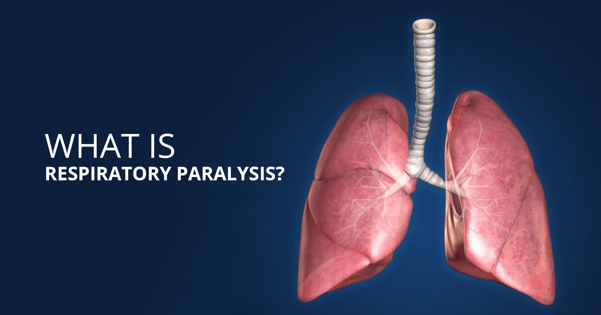 Factors that Elevate your Risk of Respiratory Paralysis