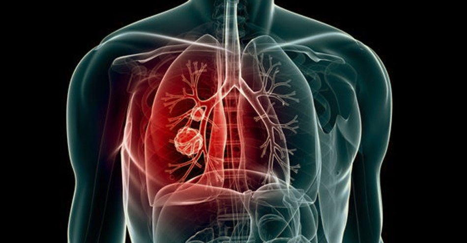Know What Smoking Does To Your Body