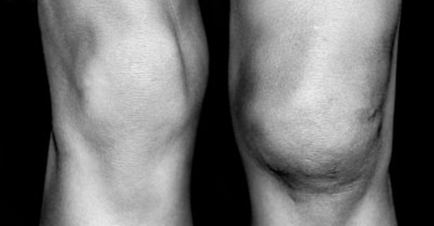 treatment for kneecap dislocation