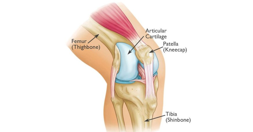 joint dislocation
