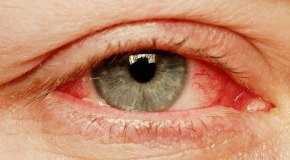Red Eye Causes and How to Treat Red Eyes