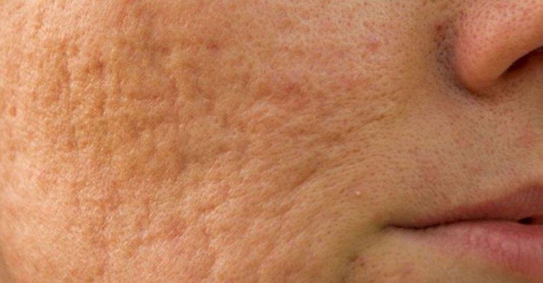 Picking pimple is dangerous