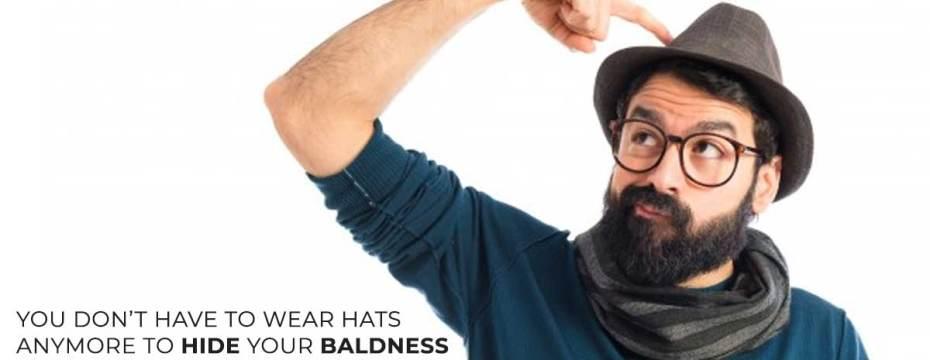 baldness in men
