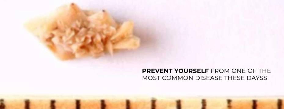 5 Easy Ways To Prevent Kidney Stones