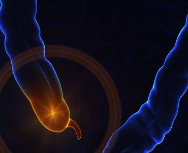 اپینڈکس کا علاج