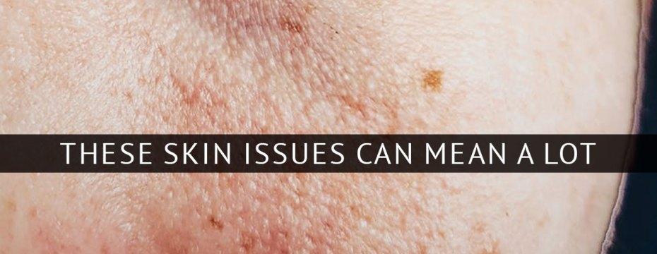 skin-issues