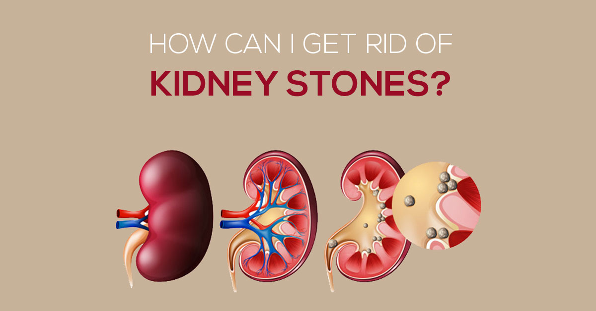 How To Get Rid Of Kidney Stones Know 6 Easy Tips Marham
