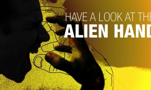 Alien Hand: Are You Also Aware Of A Similar Case?