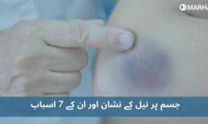 نیل کے نشان کن 7 خطرناک بیماریوں کی ابتدائی علامت ہو سکتے ہیں