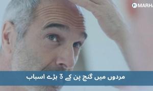 گنج پن مردوں میں ہونے کے 3 بڑے اسباب اور ان کا علاج
