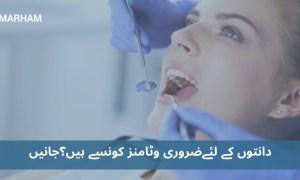 دانتوں کے لئے ضروری وٹامنز جو دانت مضبوط بناتے ہیں