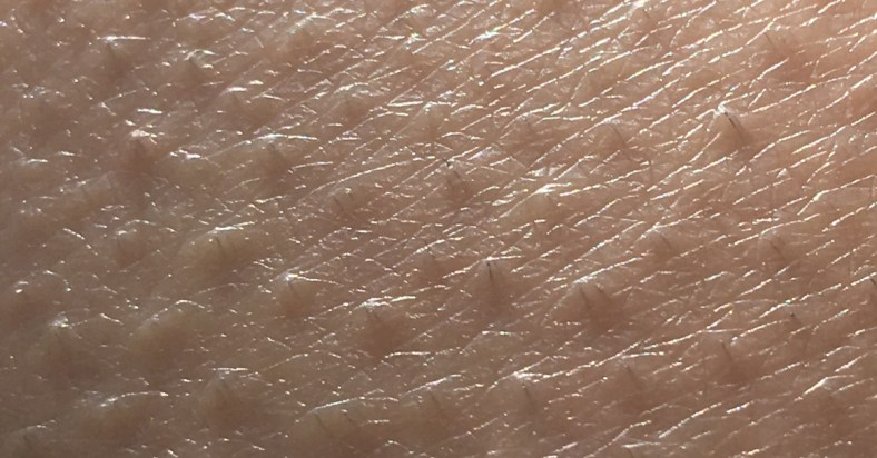 How to Remove Chicken Skin under Armpit Naturally