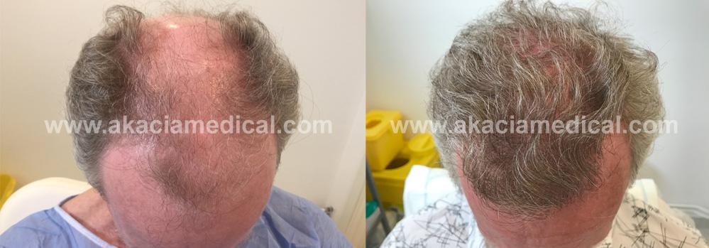 orsaker till håravfall